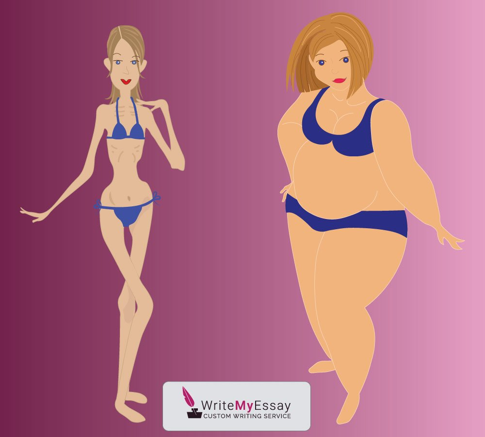Anorexia and obesity – two sides to one story essay sample
